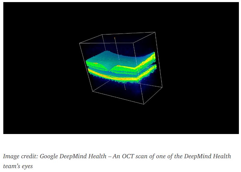 Google DeepMind system scan of an eye